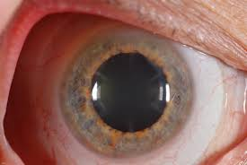 Lasik Long Island Cataract Surgery All Lasik Posts Sclerallens Com