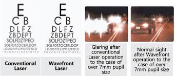 Halos Around Lights Dream Eye Center Laser Eye Surgery Korea Seoul
