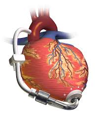 left ventricular assist devices lvads