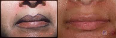 tattoo removal pima dermatology tucson az
