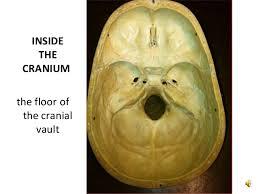 Floor Of The Cranium The Skull