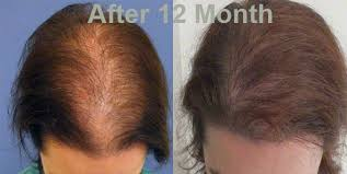 transplant hair second round draft fue hair transplant in malaysia abroad patient s experience