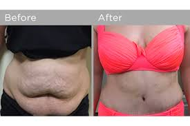 stomach muscles after c section abdominoplasty tummy tuck cosmetic surgery for women