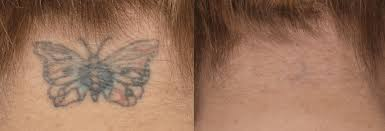 before u0026 after cynosure picosure