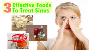 3 most effective foods treatment sinusitis youtube