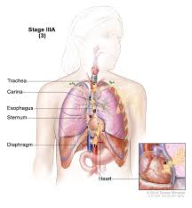 Heart Wall Anatomy Non Small Cell Lung Cancer Treatment Pdq U2014patient Version