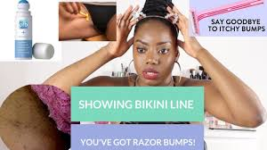 how to remove engrown hair onunderwear line razor bumps ingrown how to get rid of prevent razor bumps
