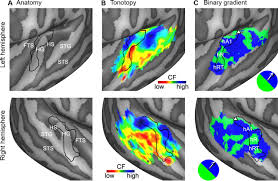 A Anatomy Processing Of Natural Sounds In Human Auditory Cortex Tonotopy
