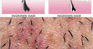 types of ingrown hair natural way to get rid of ingrown hairs chikk net