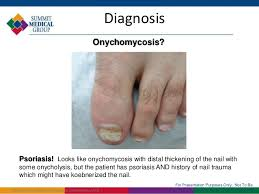 laser therapy to treat nail fungus