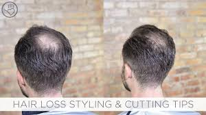 haircuts for crown bald spots how to cut style balding or thinning hair youtube