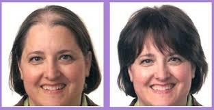 hair bonding hair treatment clinic non surgical hair replacement in delhi