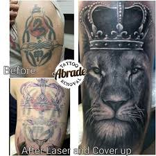 abrade tattoo removal abradetattooremoval instagram photos