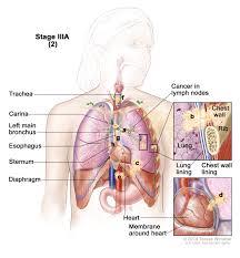 carina lung anatomy images learn human anatomy image