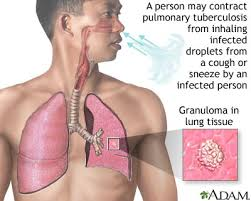 Anatomy And Physiology Definitions Anatomy And Physiology Tuberculosis Definition
