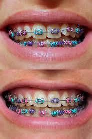 different color purples teeth bleaching braces awesome clear braces price showing the
