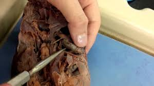 cranial nerves lane dogfish youtube