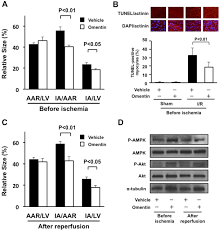 omentin prevents myocardial ischemic injury through amp activated