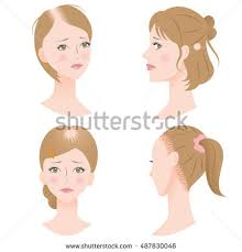 hair styles for women with center bald spots women pattern hair loss get receding stock vector 487830046
