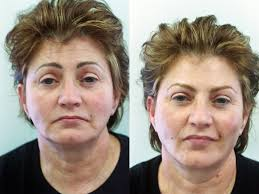 the first in massachusetts to naturally enhance your appearance