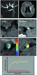 quantifying intracranial plaque permeability with dynamic contrast