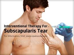 How To Palpate Subscapularis Subscapularis Tear Treatment Causes Symptoms Signs