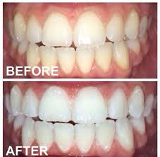 get 2 12 shades whiter in a hour beaming white teeth whitening