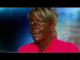 White Girl Tanning Meme - tanning mom turns weird and pale youtube