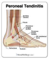 Foot Tendons Anatomy The Largest Tendon In The Human Body Is The Achilles Tendon And It
