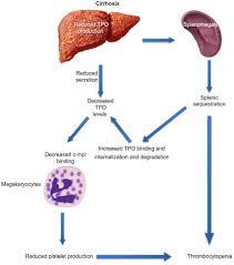 full text the pathophysiology of thrombocytopenia in chronic
