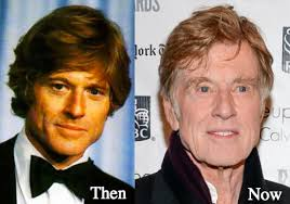 when did robert redford get red hair robert redford plastic surgery before and after photos latest