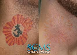 laser tattoo removal pictures tattoo removal