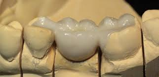 What Is Root Bridge Biocompatible Inlay Bridge From San Diego Holistic Dentist
