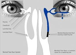 Eye Ducts Anatomy Dacryocystorhinostomy Dcr Ophthalmic Consultants Of Vermont