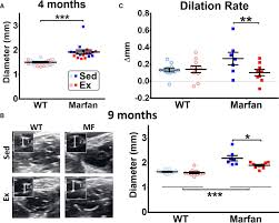 cardiovascular benefits of moderate exercise training in marfan