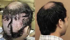 hairline restoration for black men hair transplantation before after smart hair transplant
