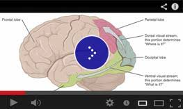 Define Cortical Blindness Videos Related To Visual Impairment And Blindness Perkins Elearning