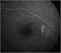Blind Spot In Left Eye Retinal Physician A Case Of An Enlarged Blind Spot In A Healthy