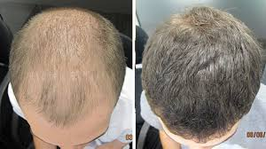 images of hair hair loss treatment causes ashley martin