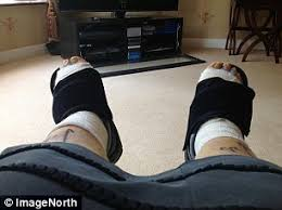 Comfortable Shoes After Foot Surgery Forget Killer Heels It U0027s Flats That Really Leave Your Feet In