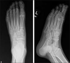 Avascular Necrosis Of The Metatarsal Head A 17 Year Old Male Patient With Left Midfoot Pain Page 2