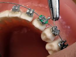 nickel free braces orthodontics