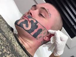 man has u0027devast8 u0027 tattoo removed because it prevented him from