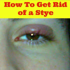 how to get rid of a stye in your eye eye stye treatment hubpages