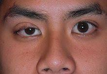 What Is Congenital Blindness Ptosis Eyelid Wikipedia