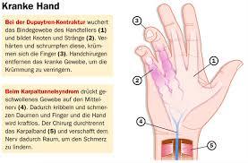 knoten handinnenfläche handchirurgie bei einer dupuytren kontraktur gesundheitsberater