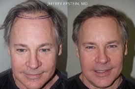 male hair transplants miami fl