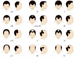 types of hair lines best types of hairlines with types of receding hairlines is a