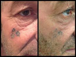 3x treatments face tattoos can be tricky as the area being