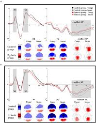 frontiers deficits in letter speech sound associations but